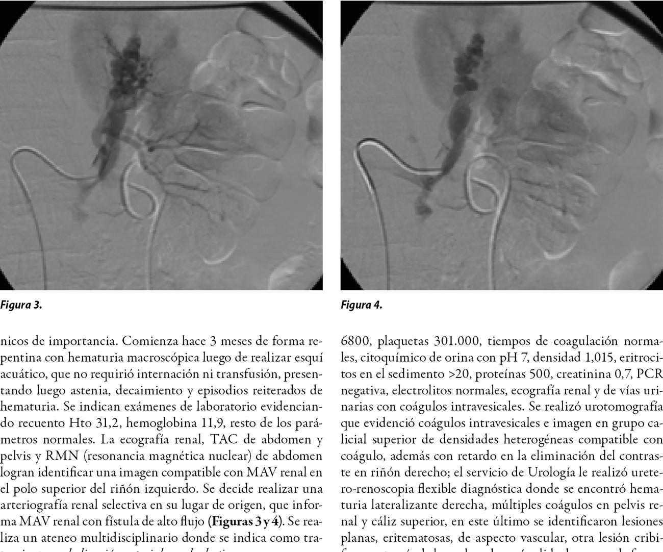 Manejo endovascular en pacientes con malformación vascular renal: revisión de la literatura y la experiencia de 2 casos