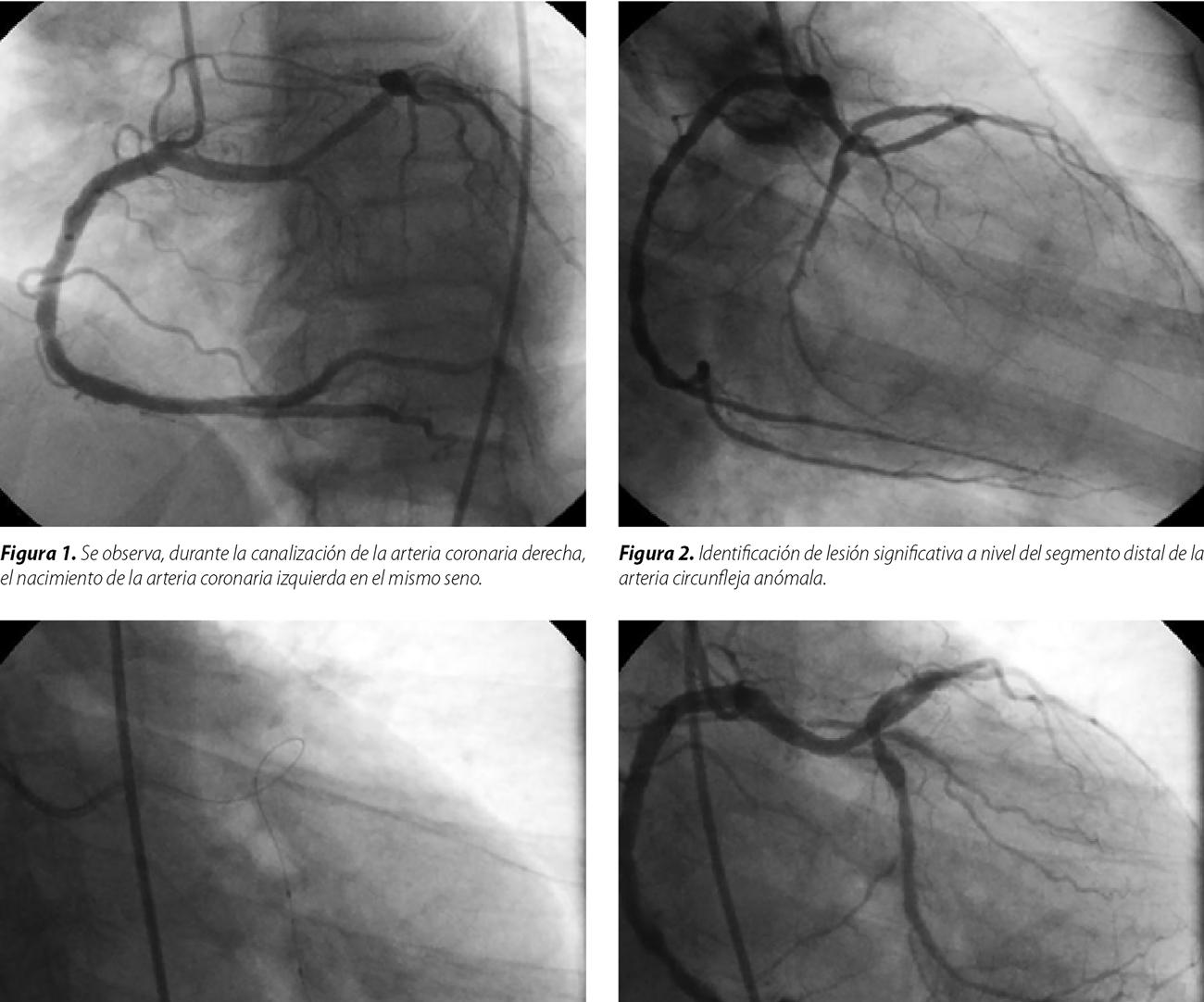 Angioplastia coronaria de arteria circunfleja con arteria coronaria izquierda anómala y nacimiento desde el seno de Valsalva derecho. Reporte de un caso