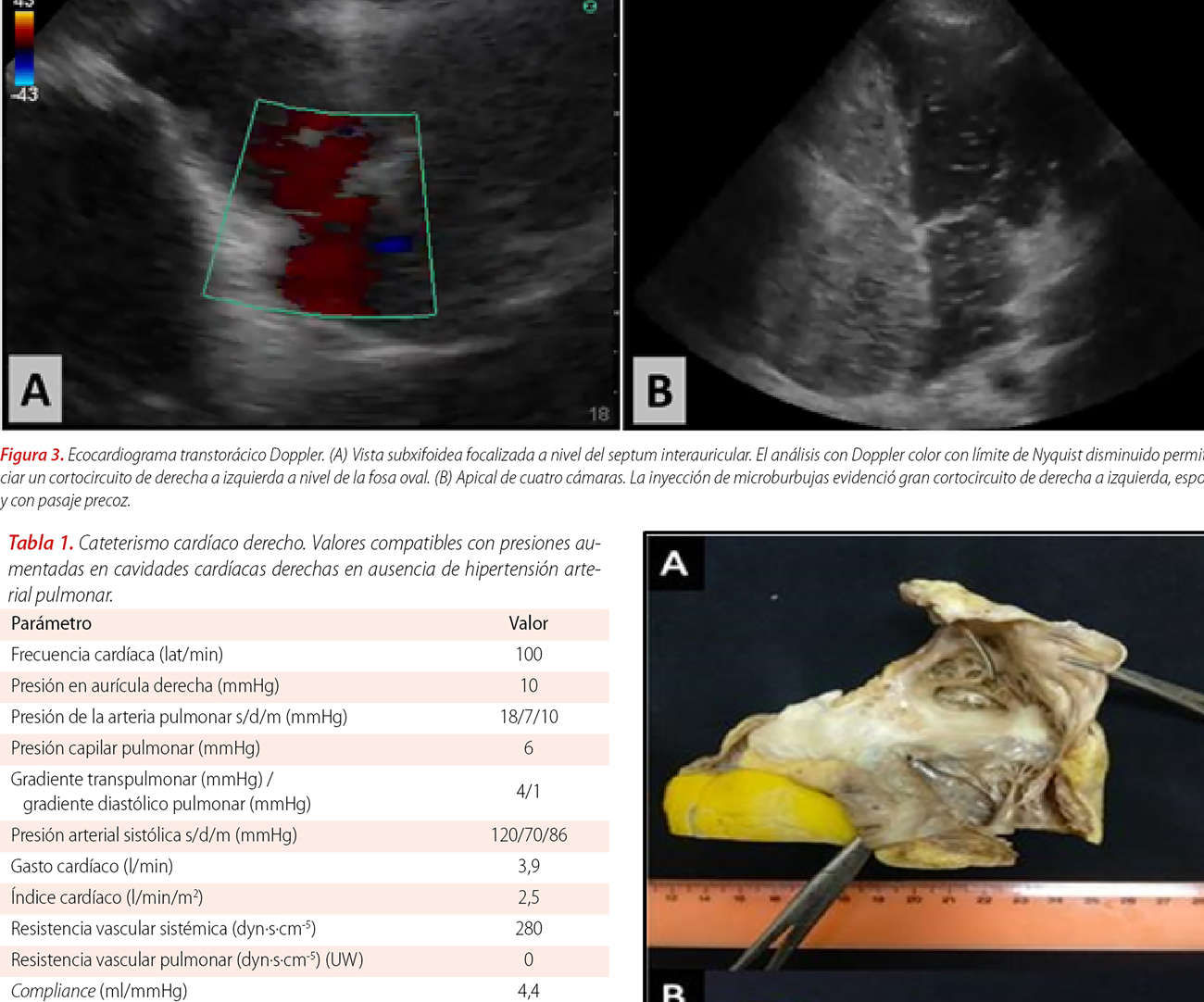 Shunt intracardíaco de derecha a izquierda en paciente con foramen oval permeable y ausencia de hipertensión pulmonar: una asociación poco frecuente