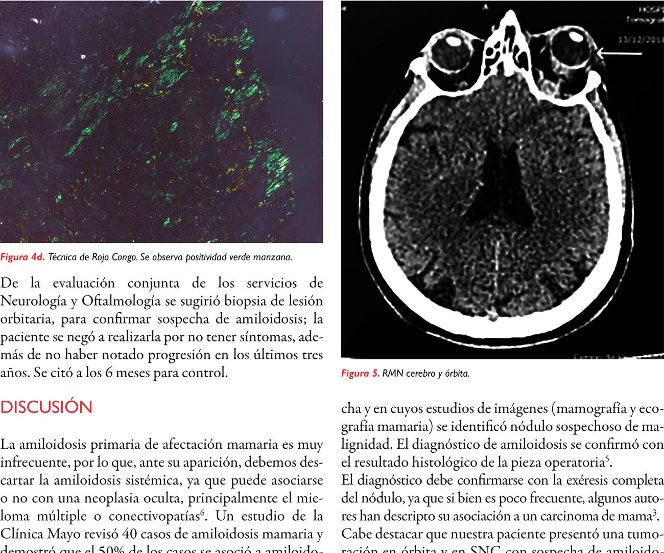 Amiloidosis mamaria. Reporte de un caso