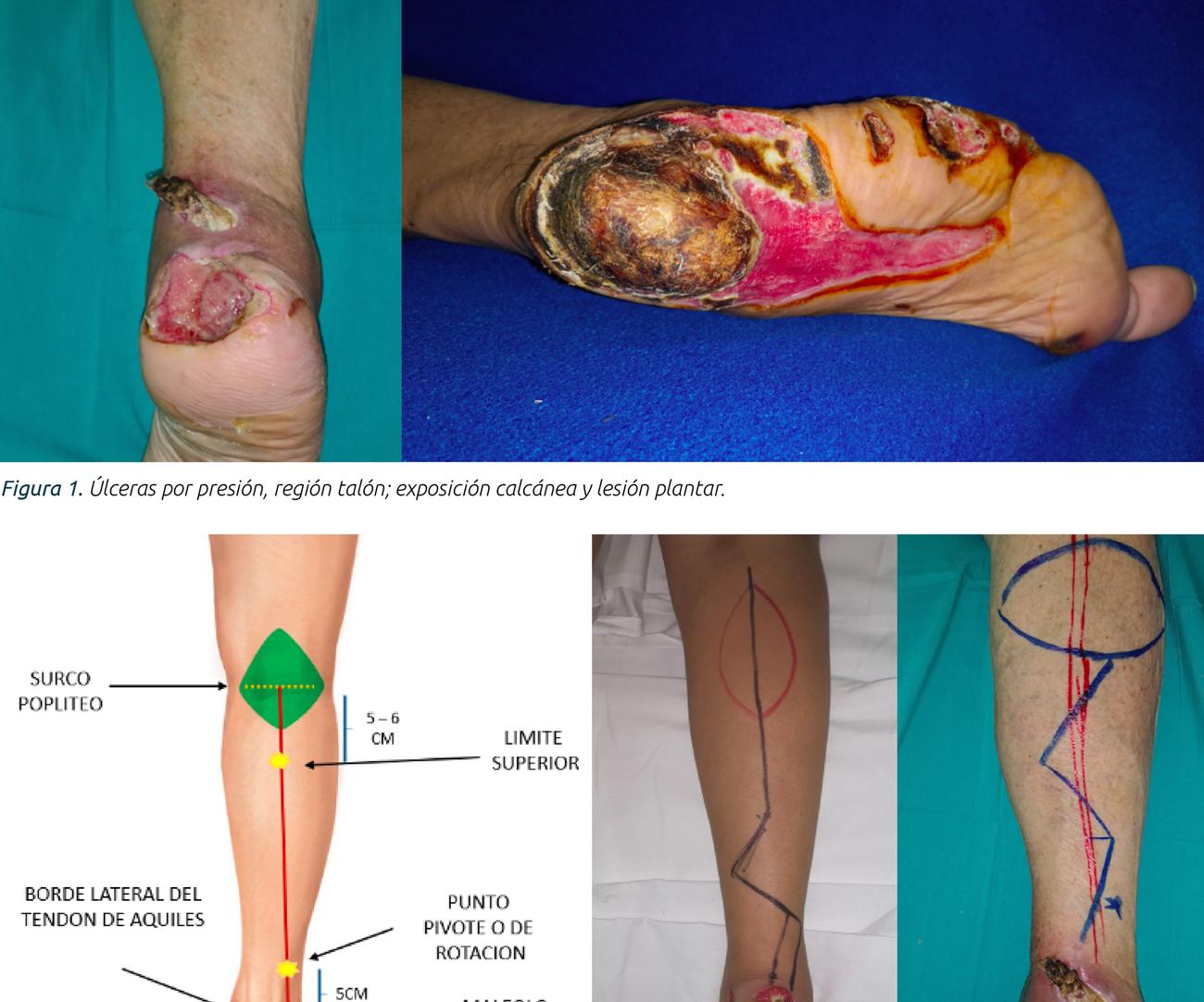 Reconstrucción con colgajo peroneo posterior  para cobertura de defectos del tercio distal  de la pierna y el tercio proximal del pie