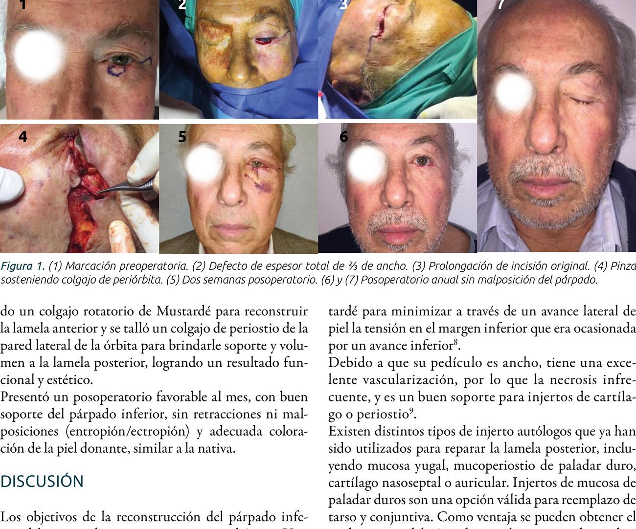 Reconstrucción palpebral inferior mediante colgajo  de periostio y colgajo de Mustardé
