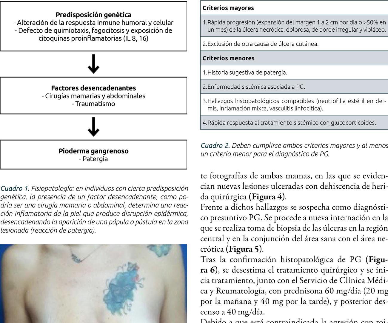 Pioderma gangrenoso en mamoplastia posbariátrica