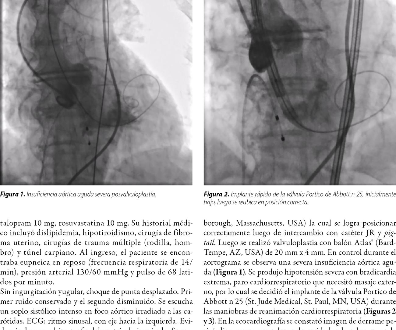 Insuficiencia aórtica aguda, derrame pericárdico y resucitación cardiopulmonar durante TAVI: doble complicación e implante exitoso en una válvula autoexpandible