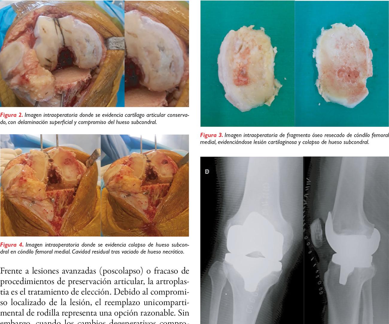 Osteonecrosis espontánea de rodilla
