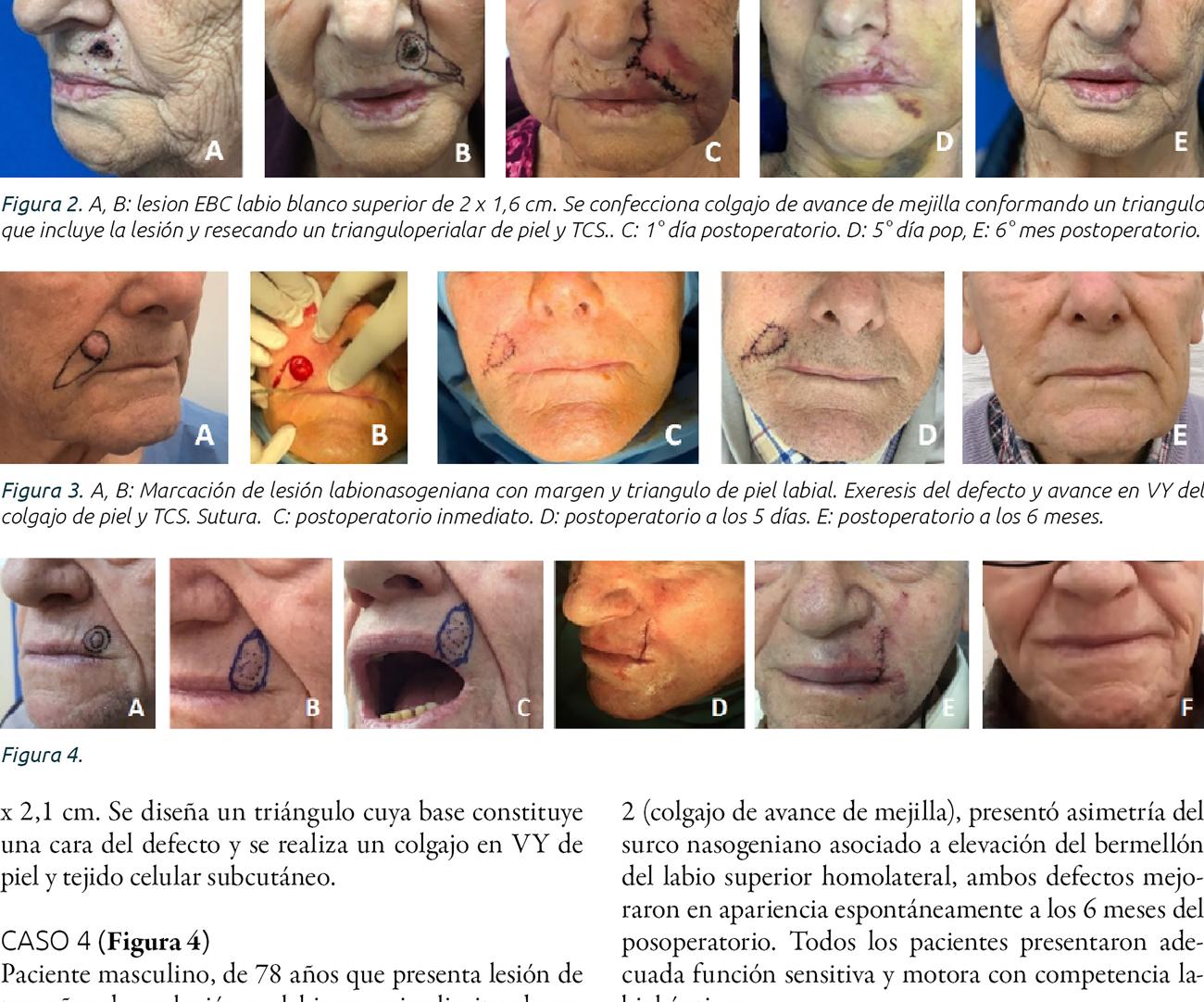 Reconstrucción de defectos de labio superior  con colgajos locales. Presentación de casos  y revisión bibliográfica