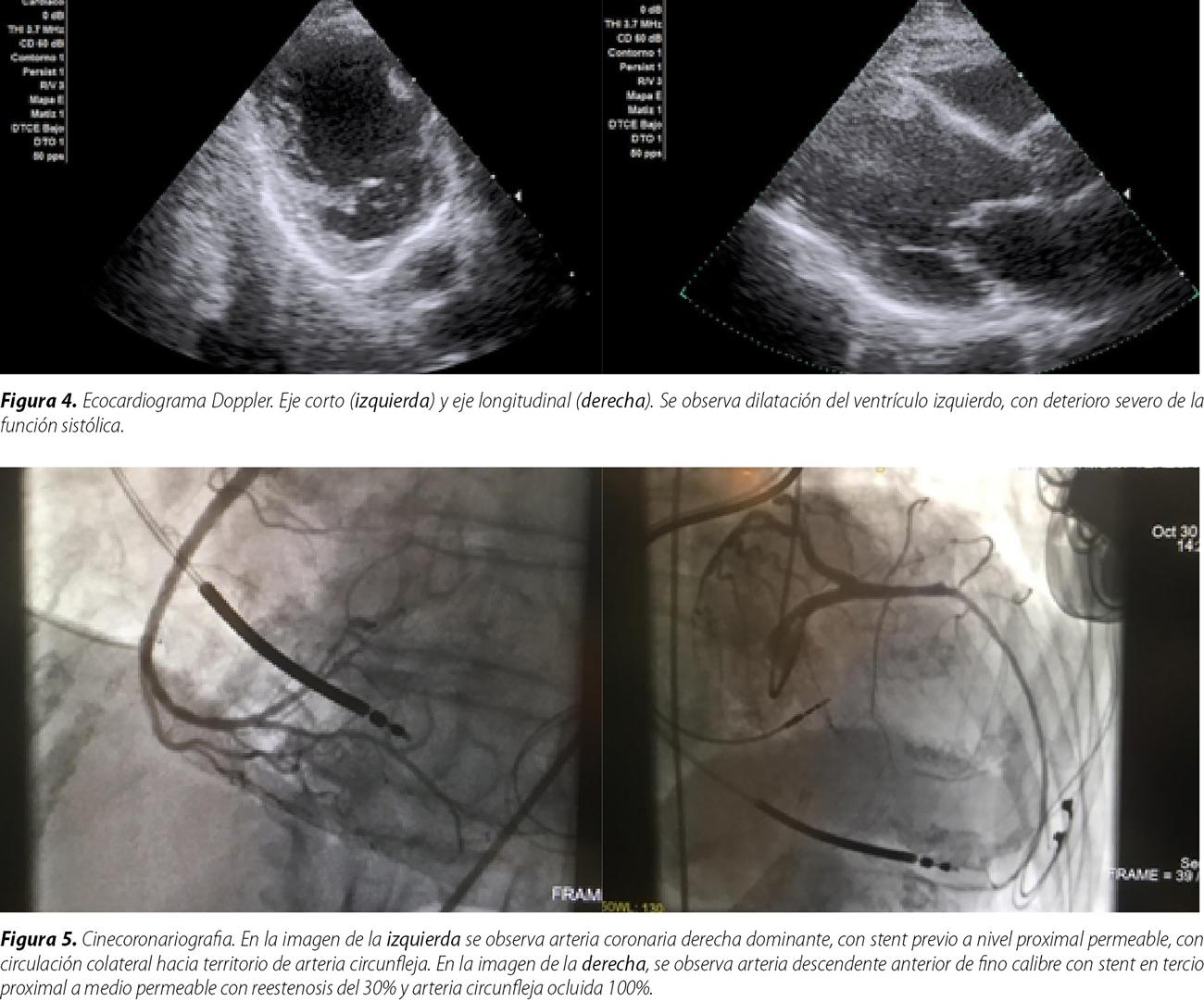 Ciclos ambulatorios y repetitivos de levosimendán en insuficiencia cardíaca avanzada. Revisión y presentación de casos clínicos