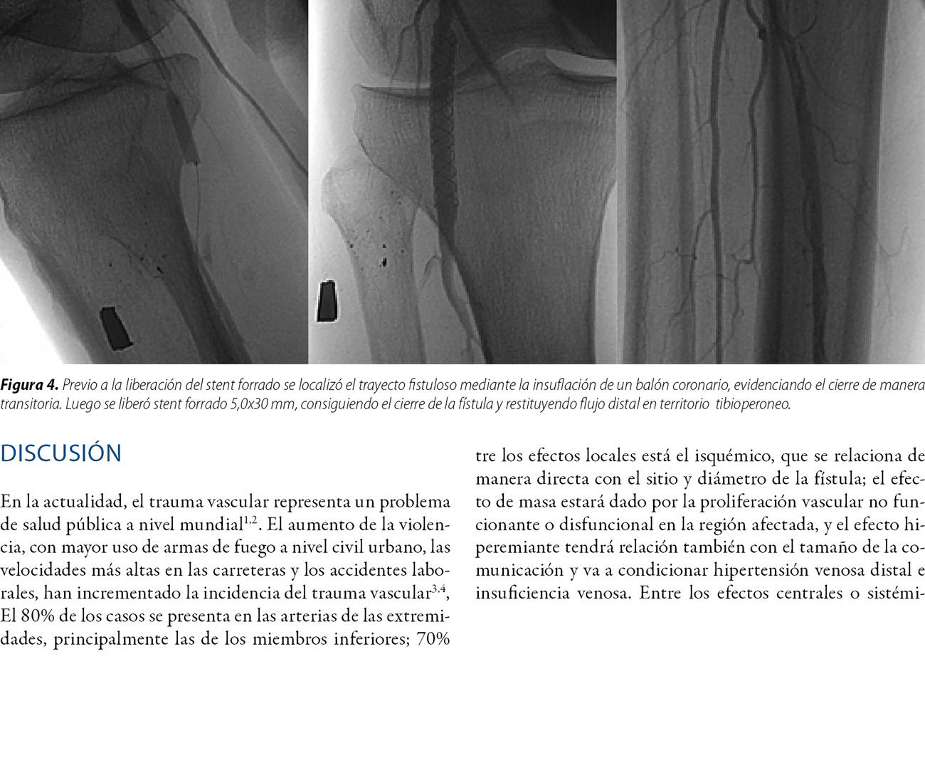 Fístula arteriovenosa de origen traumático. Resolución endovascular