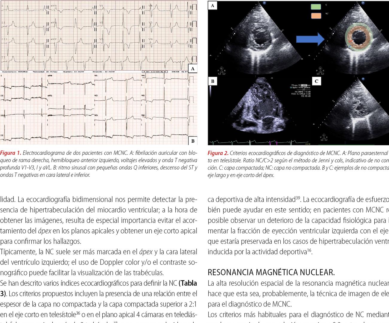 Estado del arte en miocardiopatía no compactada