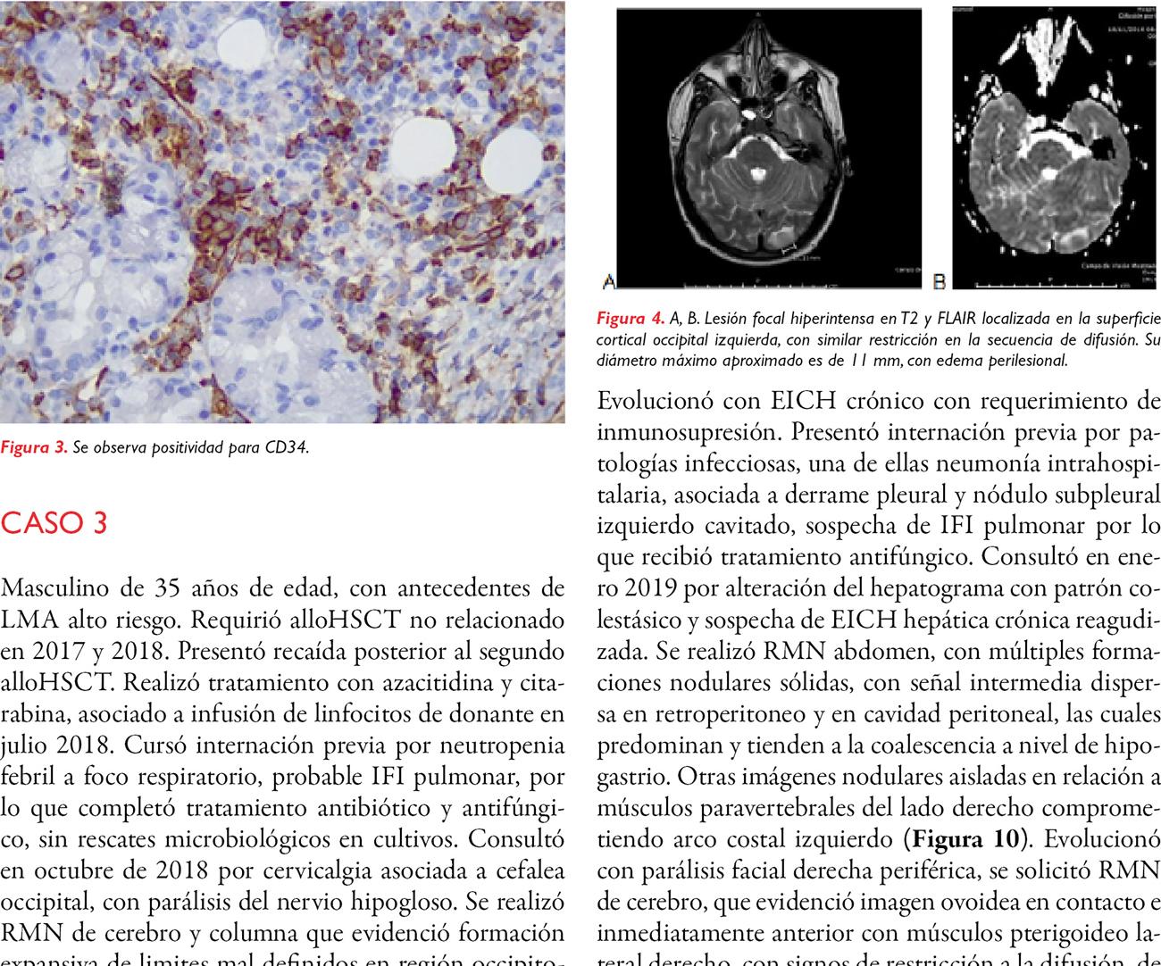 Sarcoma mieloide como recaída de leucemia mieloide aguda